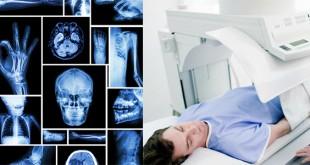 X Ray Technology